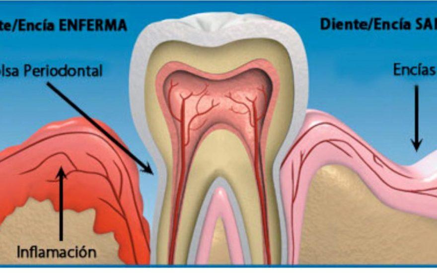 Enfermedad Periodontal: causas, prevención y tratamiento