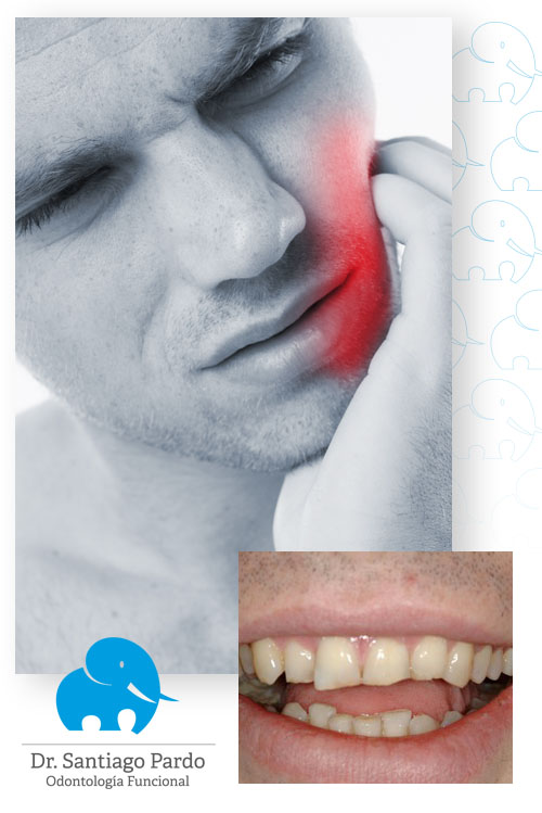 Desgaste dental por estres