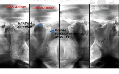 Hipermovilidad articular: Qué es, síntomas y tratamiento